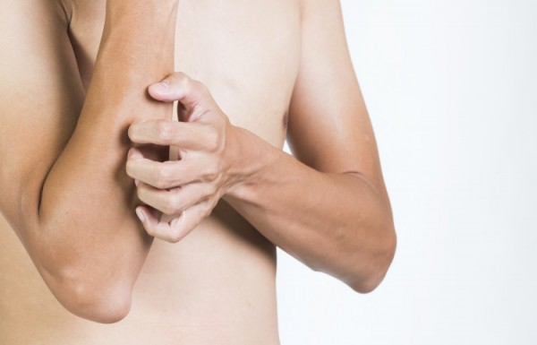 טיפול באטופיק דרמטיטיס